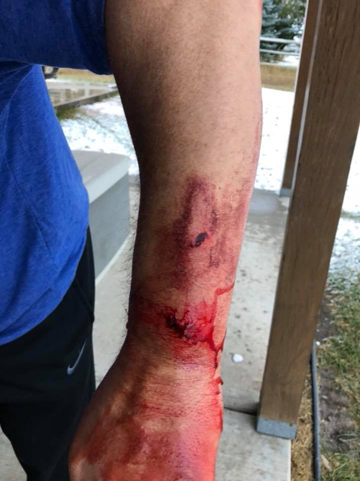Elk Hunter Mauled By Grizzly Bear In Montana